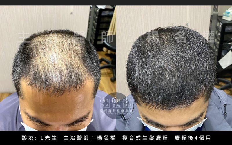 楊名權,植髮,生髮,禿頭,雄性禿,楊氏羅丹,台北植髮
