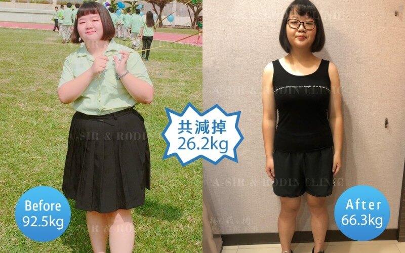 減肥減重,減肥門診,減重門診,雷永兆,楊氏羅丹,楊氏診所,台北減重,塑身,體態
