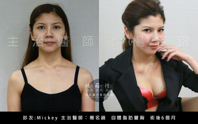 胸部胸部整形平胸楊名錦楊氏羅丹台北醫美