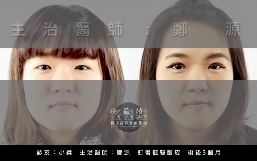 雙顏皮,眼部整形,醫美,台北醫美,楊氏羅丹,羅丹,揚士,楊名錦,鄭源